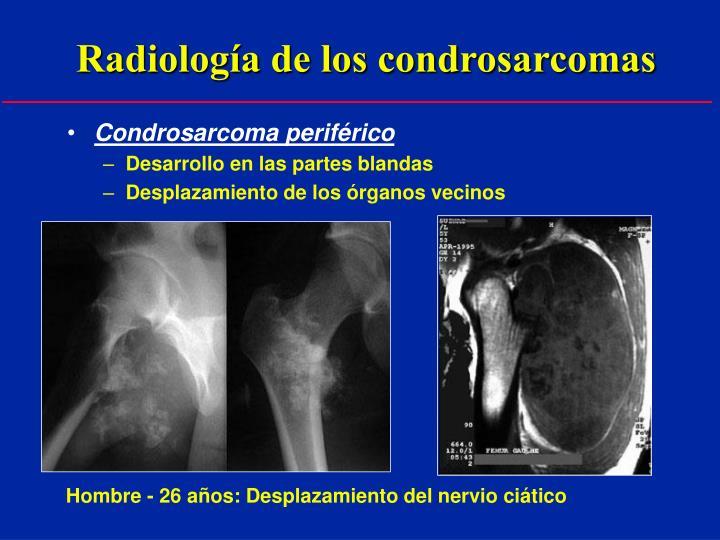 Radiología de los condrosarcomas