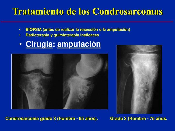 Tratamiento de los Condrosarcomas