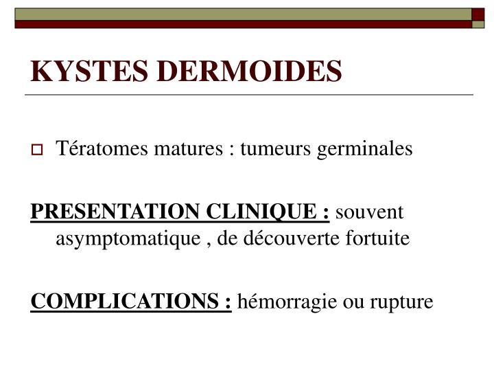 KYSTES DERMOIDES