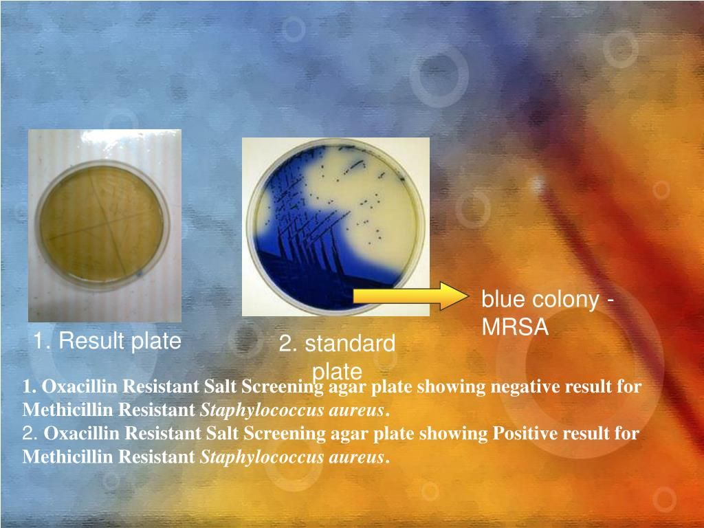 blue colony - MRSA