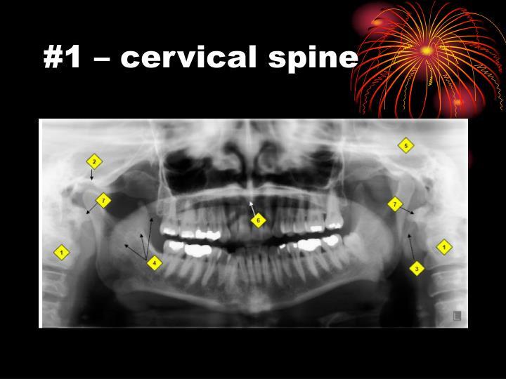 #1 – cervical spine