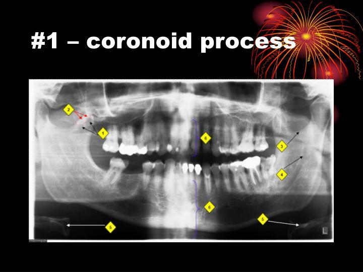 #1 – coronoid process