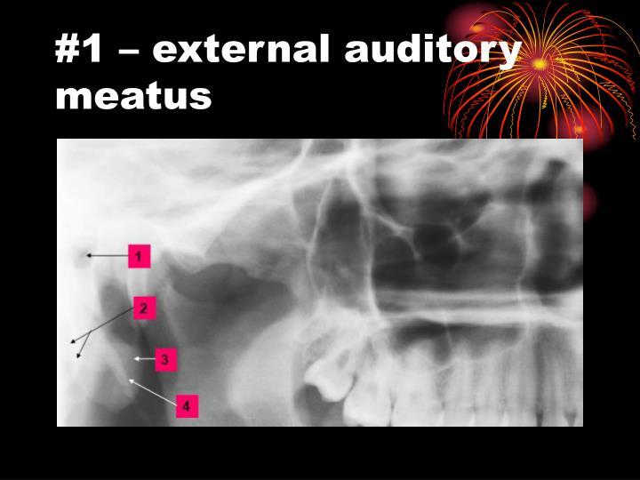 #1 – external auditory meatus