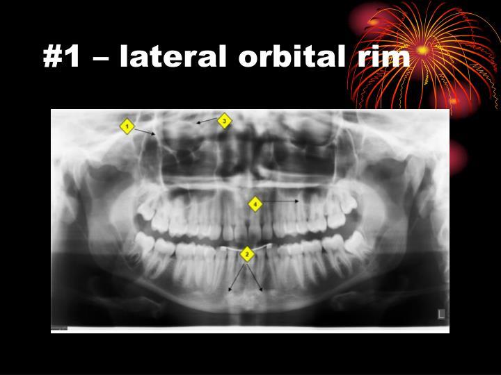 #1 – lateral orbital rim