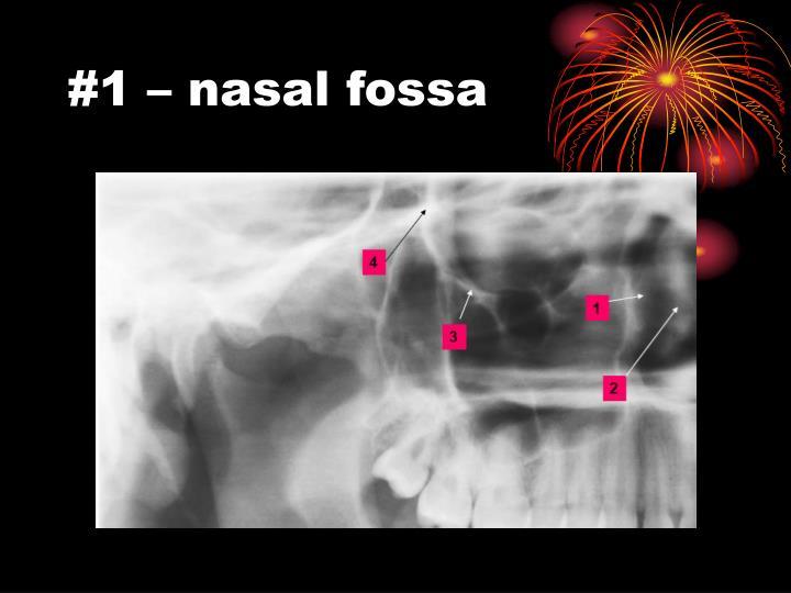 #1 – nasal fossa