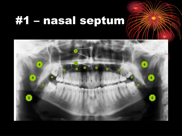 #1 – nasal septum
