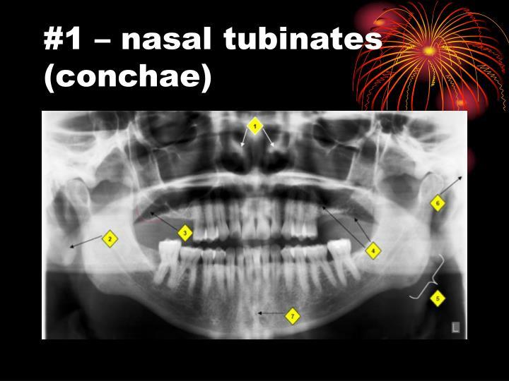 #1 – nasal tubinates (conchae)