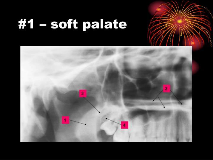 #1 – soft palate