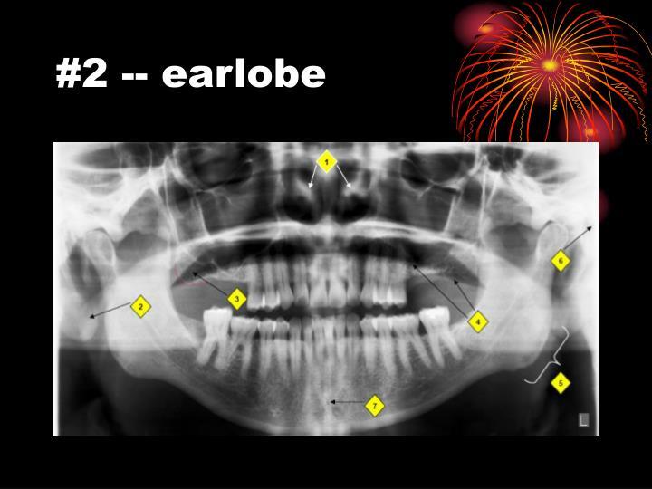 #2 -- earlobe