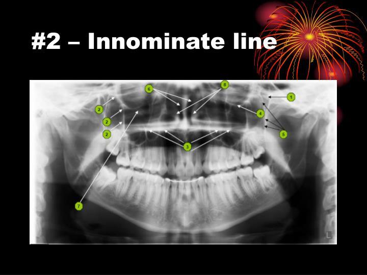 #2 – Innominate line