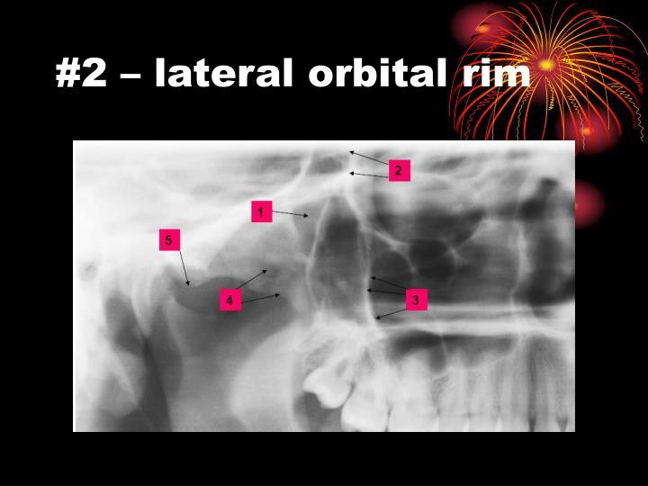 #2 – lateral orbital rim