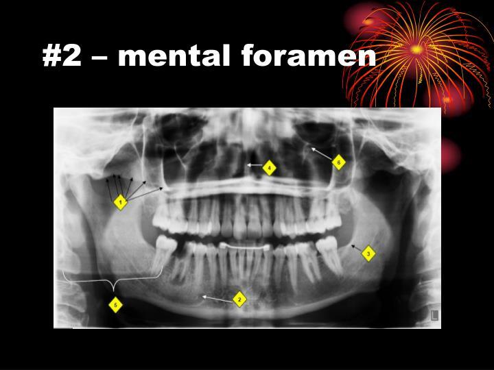 #2 – mental foramen