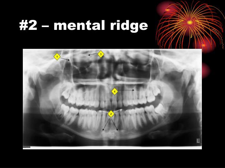 #2 – mental ridge