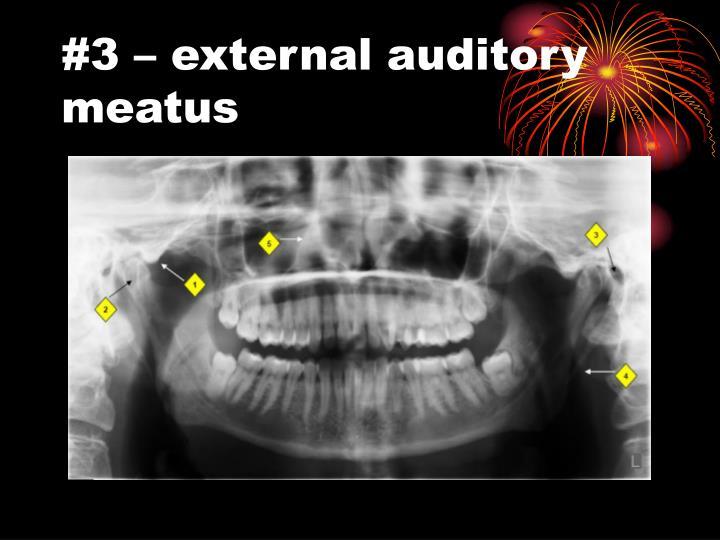 #3 – external auditory meatus