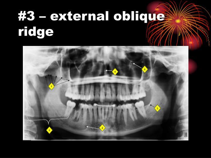 #3 – external oblique ridge