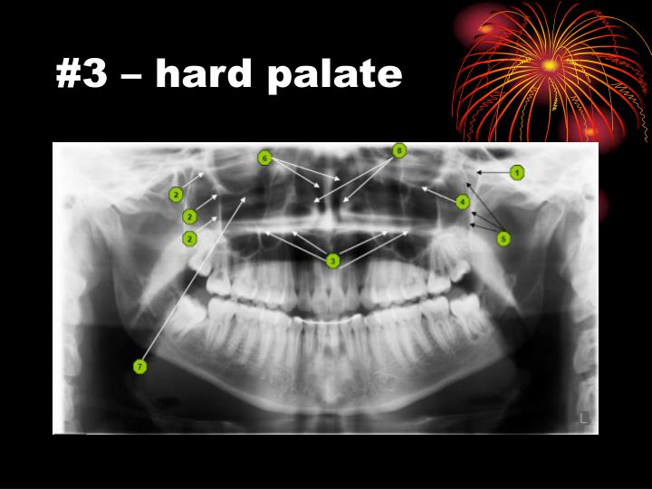 #3 – hard palate