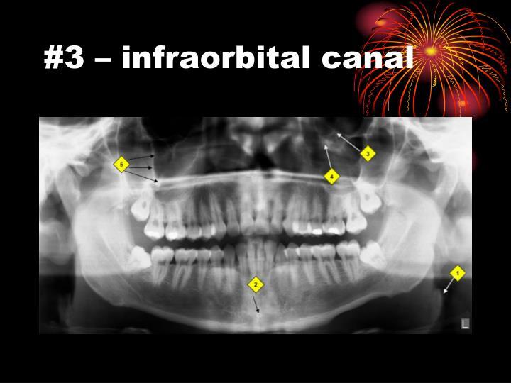 #3 – infraorbital canal