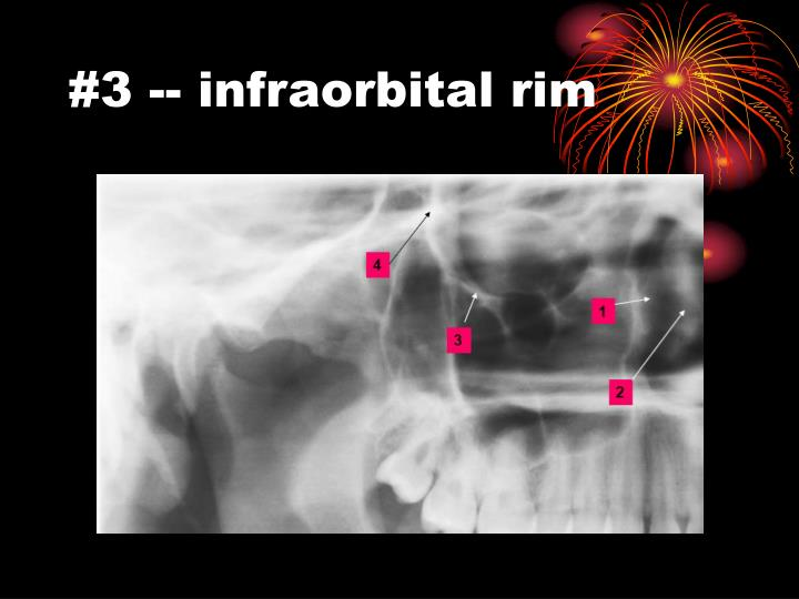 #3 -- infraorbital rim