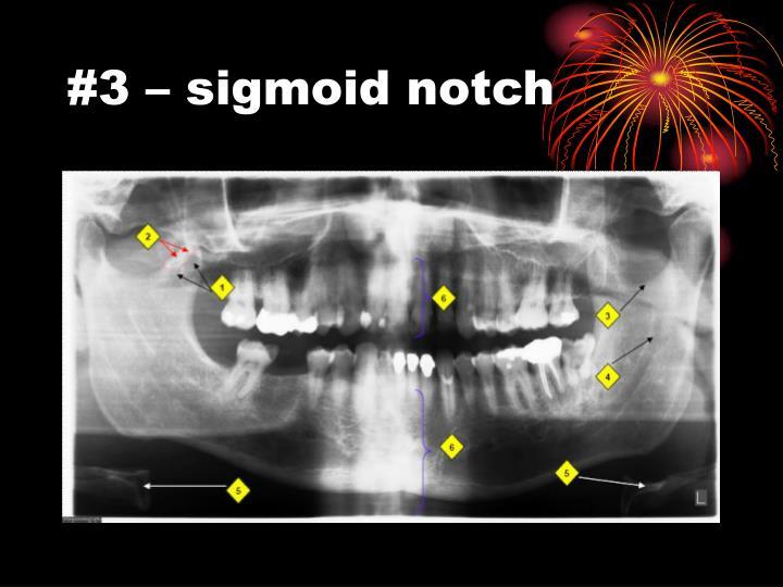 #3 – sigmoid notch
