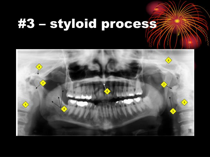 #3 – styloid process