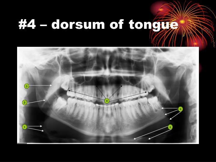 #4 – dorsum of tongue