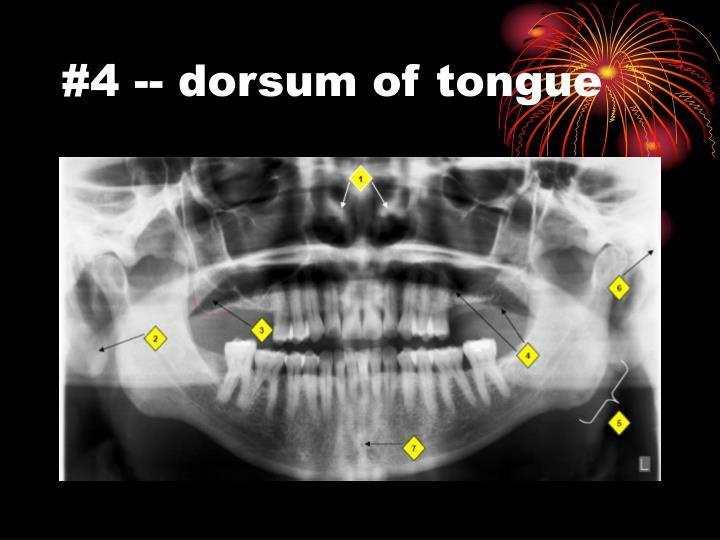 #4 -- dorsum of tongue
