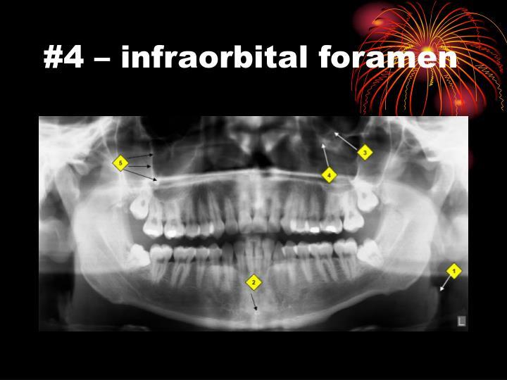 #4 – infraorbital foramen