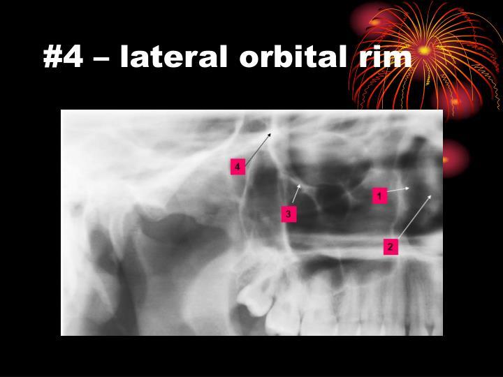 #4 – lateral orbital rim