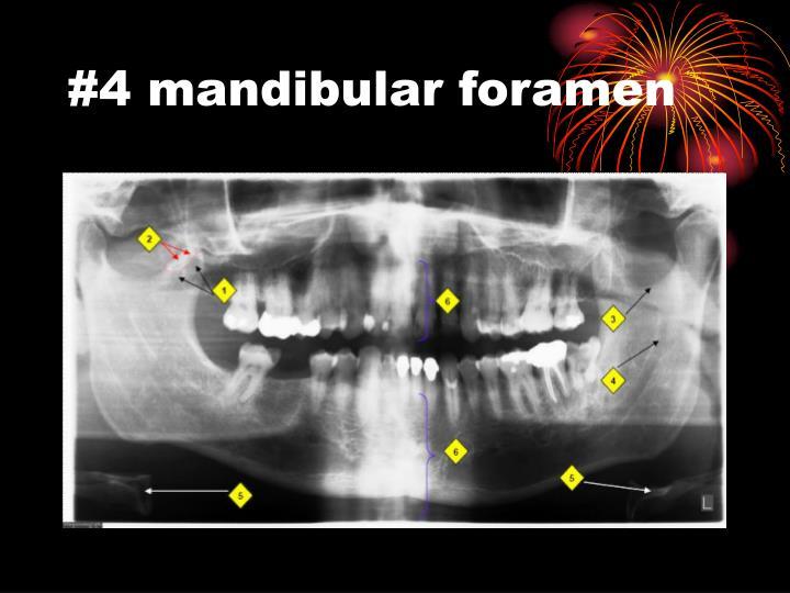 #4 mandibular foramen