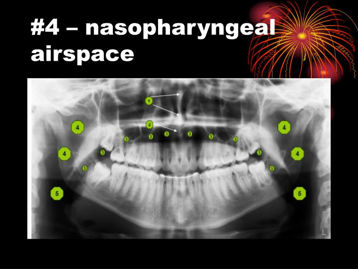 #4 – nasopharyngeal airspace