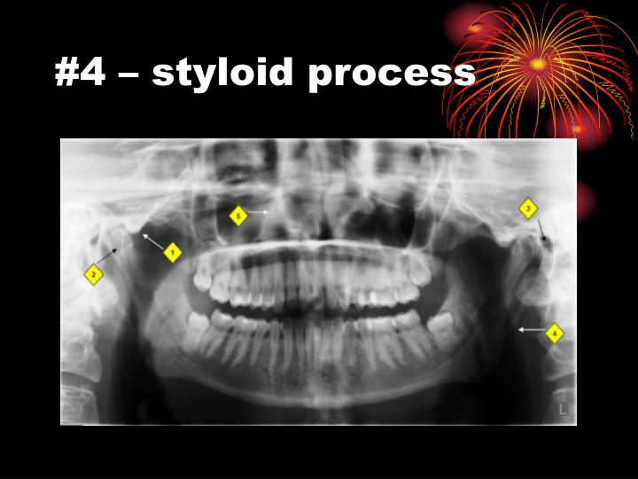 #4 – styloid process