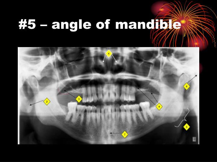 #5 – angle of mandible