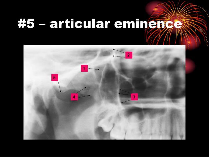 #5 – articular eminence