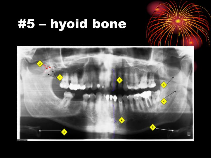 #5 – hyoid bone