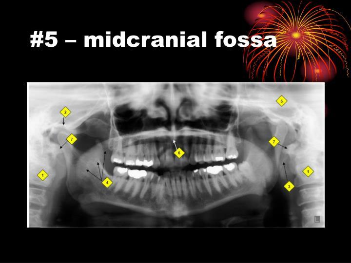 #5 – midcranial fossa