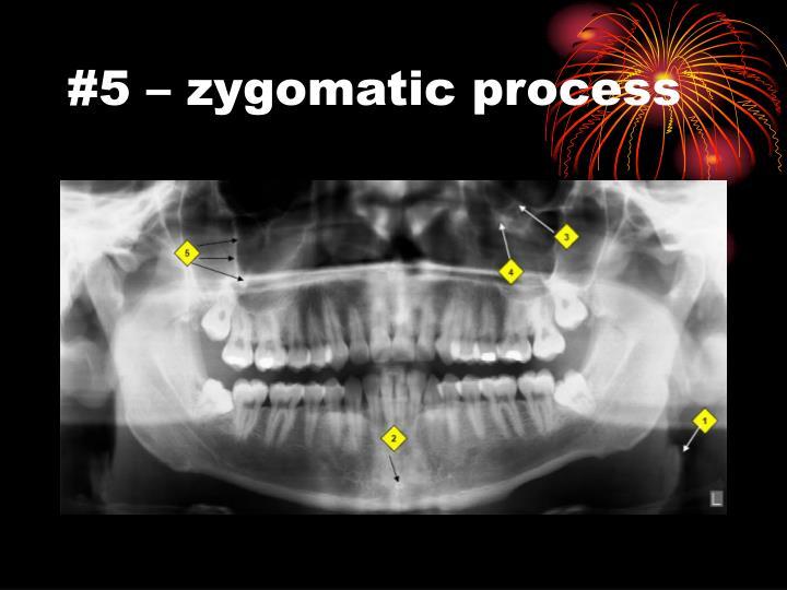 #5 – zygomatic process