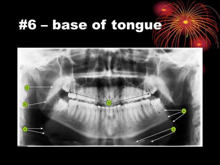 #6 – base of tongue