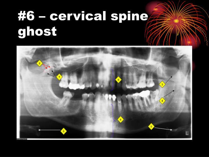 #6 – cervical spine ghost