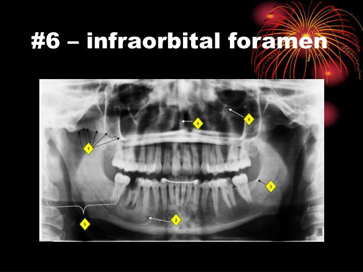 #6 – infraorbital foramen