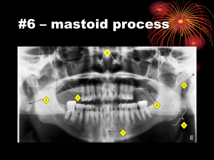 #6 – mastoid process