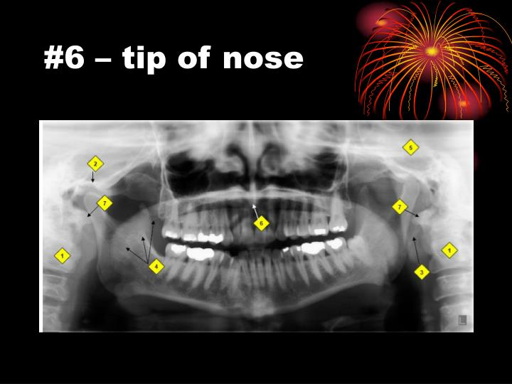 #6 – tip of nose