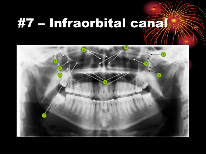 #7 – Infraorbital canal
