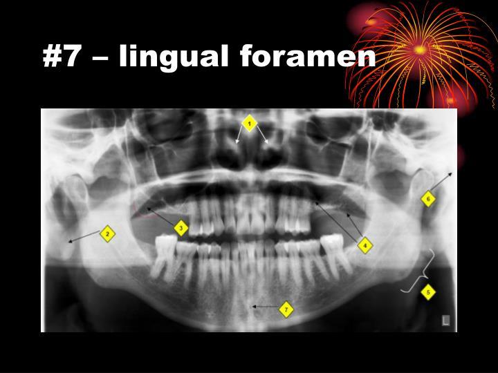 #7 – lingual foramen