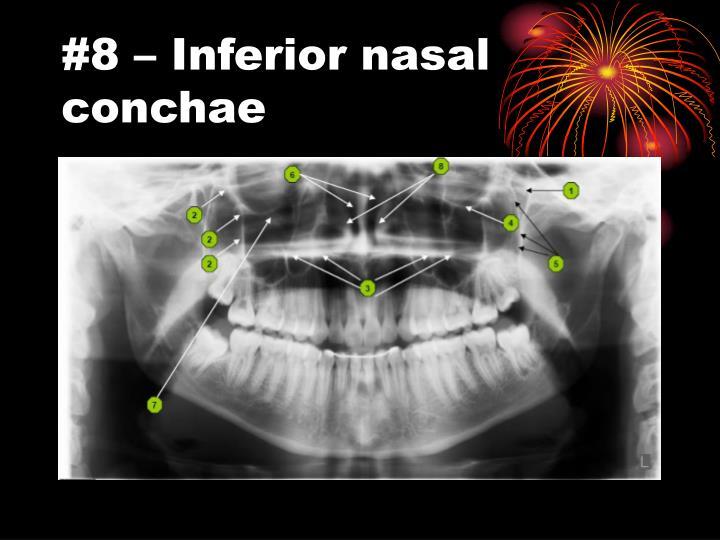 #8 – Inferior nasal conchae