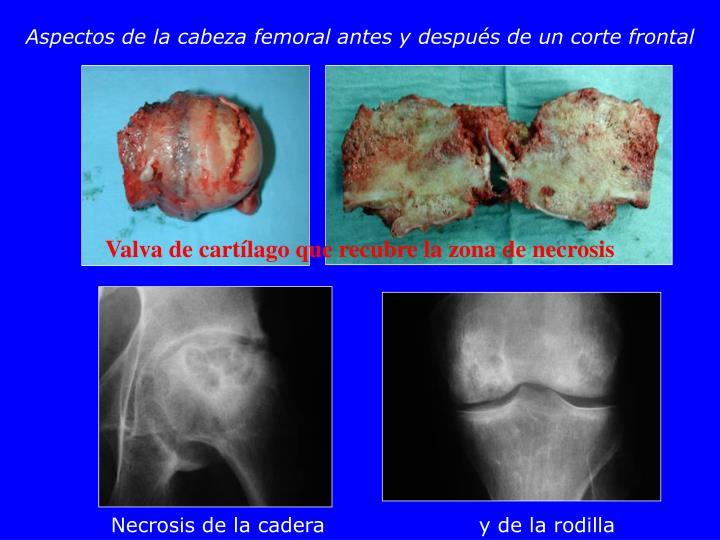 Aspectos de la cabeza femoral antes y después de un corte frontal