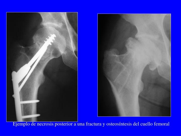 Ejemplo de necrosis posterior a una fractura y osteosíntesis del cuello femoral