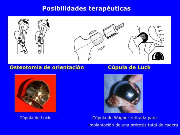 Posibilidades terapéuticas