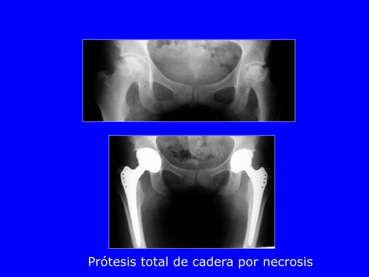 Prótesis total de cadera por necrosis