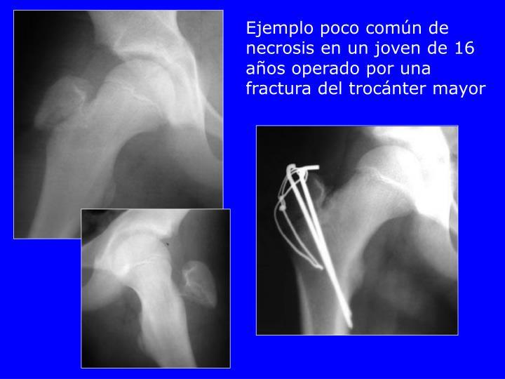 Ejemplo poco común de necrosis en un joven de 16 años operado por una fractura del trocánter mayor