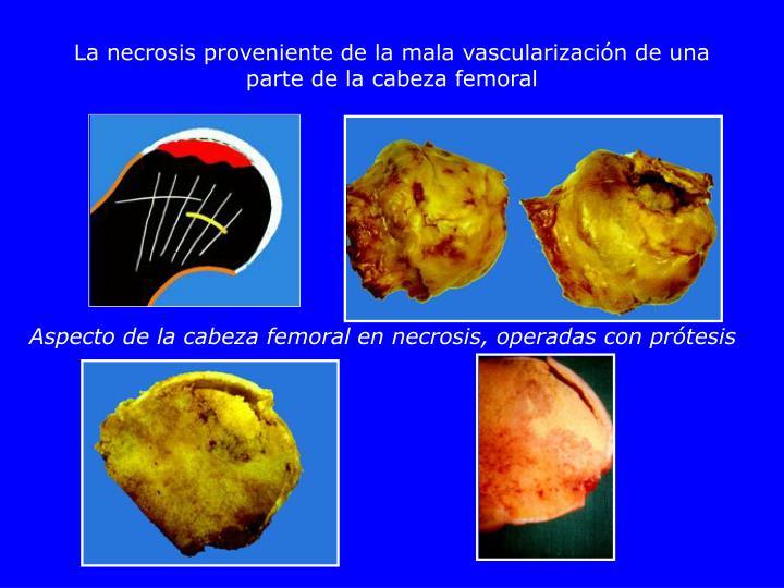 La necrosis proveniente de la mala vascularización de una parte de la cabeza femoral